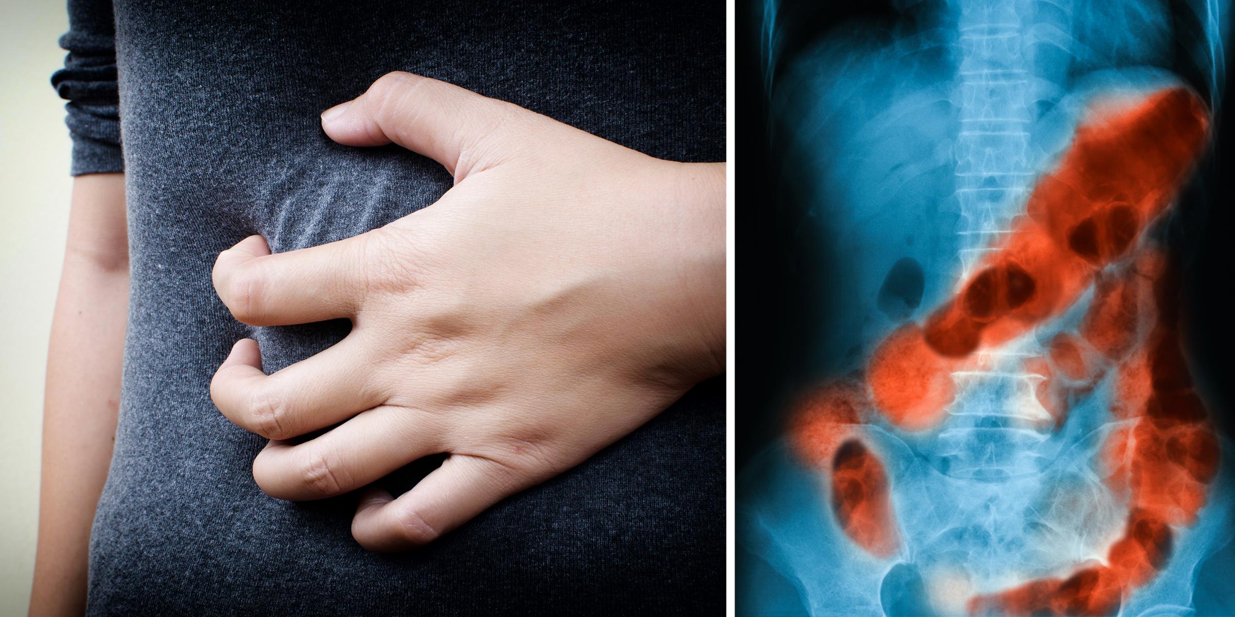 vastagbélrák túlélése gyomorrák okai