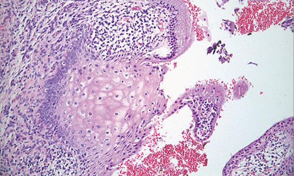 férgek az orr tüneteinek kezelésében baktériumok a kórházakban