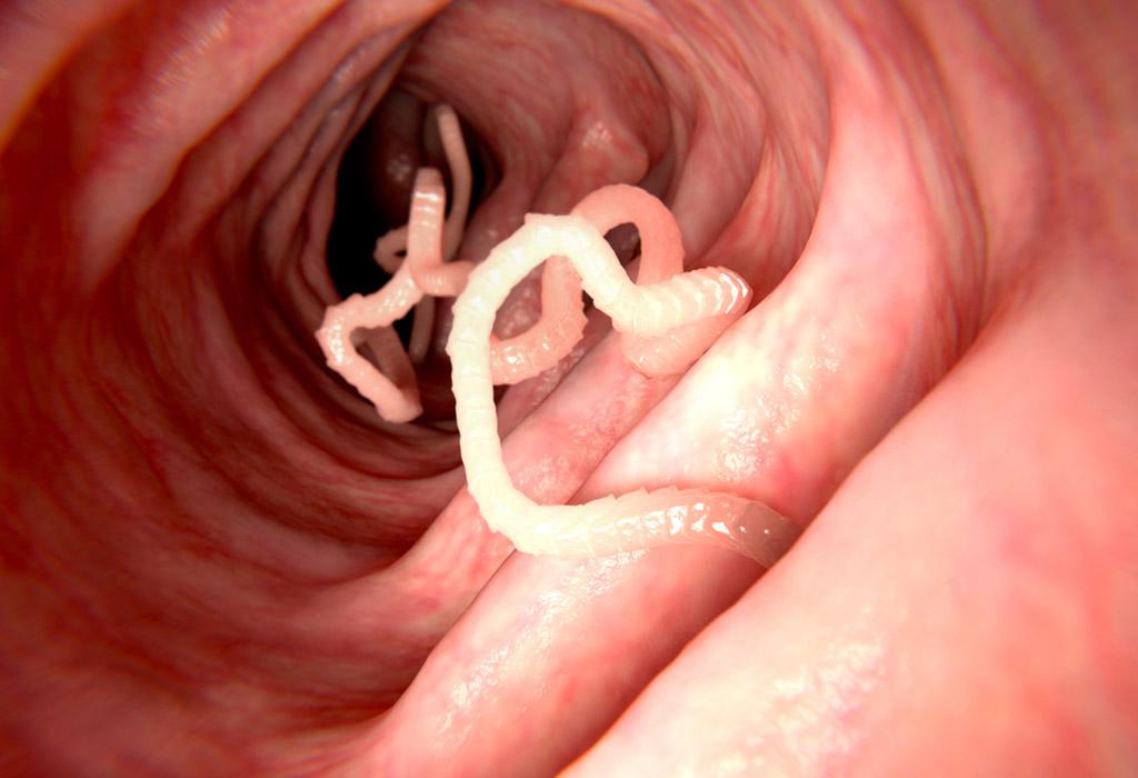 Parazitá eltavolitasa. 12 biztos jele annak, hogy parazita van a testedben | kimev-plasztik.hu