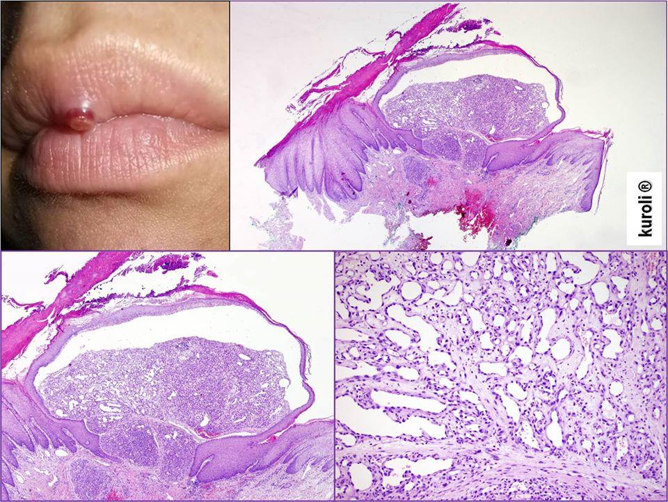 bőr papillomatosis szövettana dysbiosis és crohn-betegség