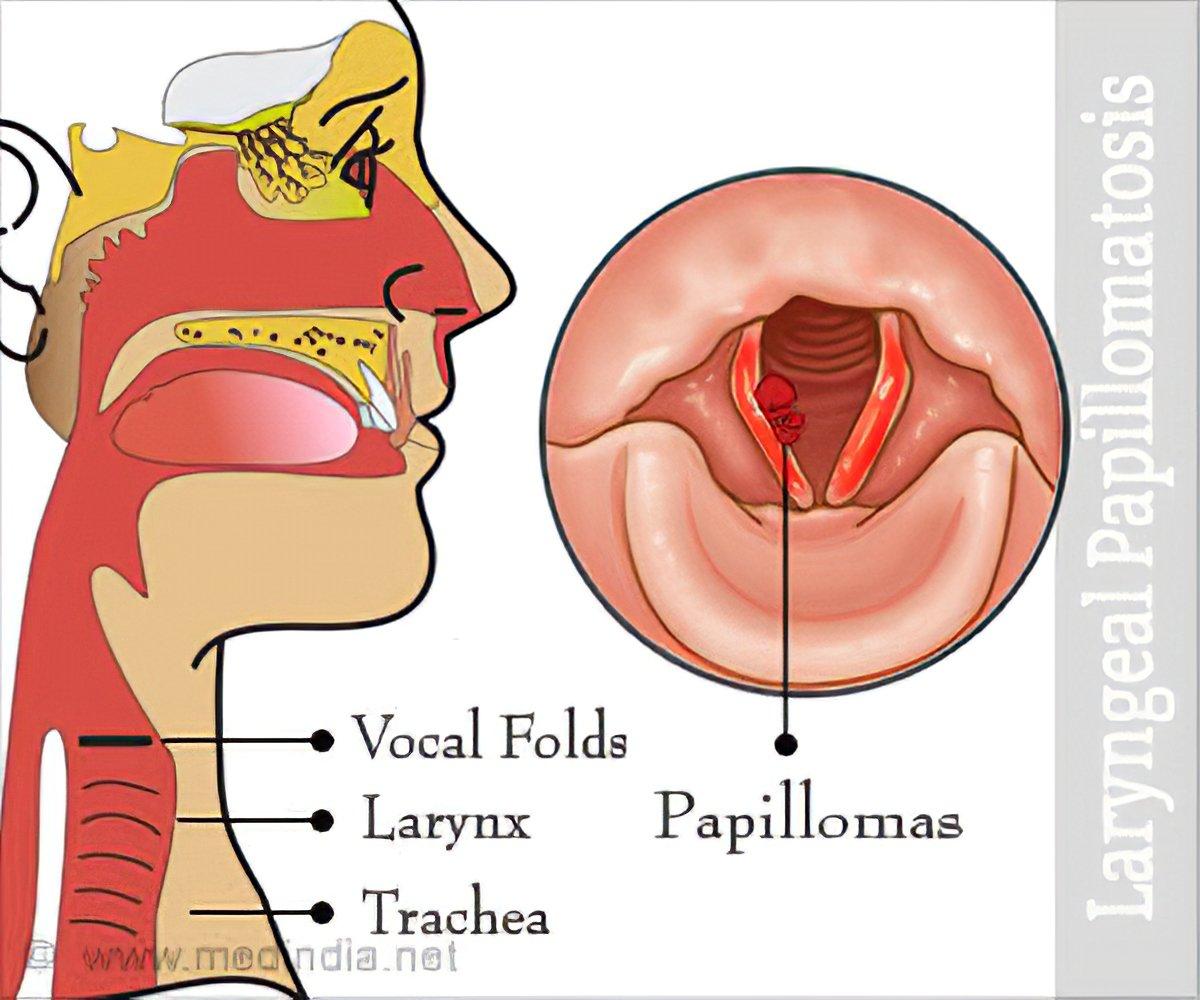 népszerű élősködő gyógyszer papilloma vírus olasz tünetek