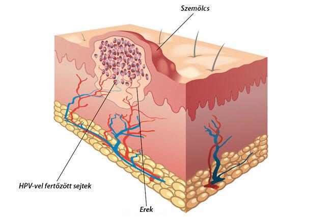 Condyloma papillómák a nyakon. A vírusos szemölcs előfordulása