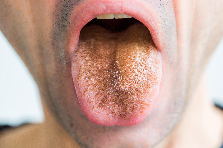 Mi okozza a papillómák megjelenését a nyelv alatt?