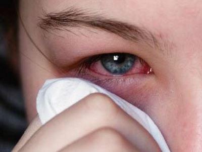 szem baktériumok metiluracil kenőcs és szemölcsök