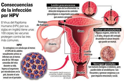 papilloma patológia
