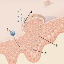 sebgyógyulás a genitális szemölcsök után