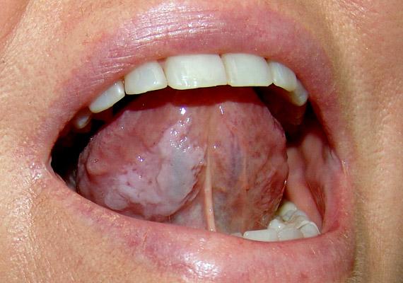 Mikor gyanakodjunk szájüregi rákra?