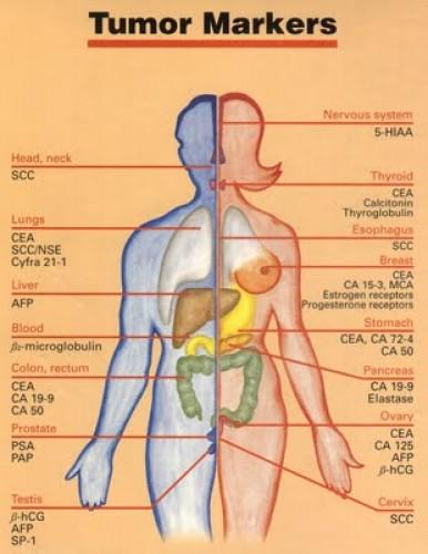 gyomorrák markerek