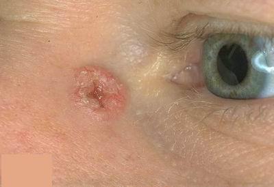 agresszív rákos szarkóma gyermekférgek kezelése