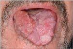 szájüregi rák története