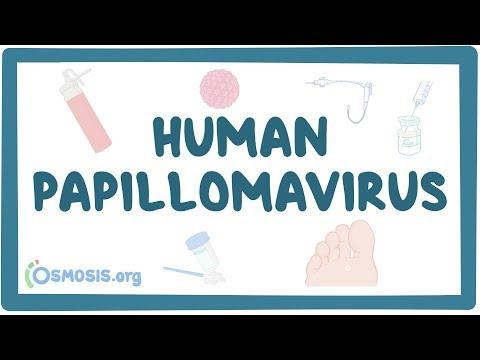 HPV-fertőzés tünetei és kezelése Hpv gyógyítás áttörés