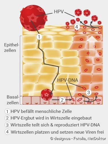 hpv vírus heilung férgek kfc craiova