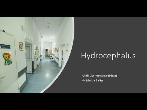 Helminták fertőzés vízen keresztül, Fertőző betegségek diagnosztizálása giardiasis helminták