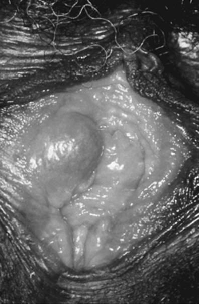 vestibularis papillomatosis diagnózis
