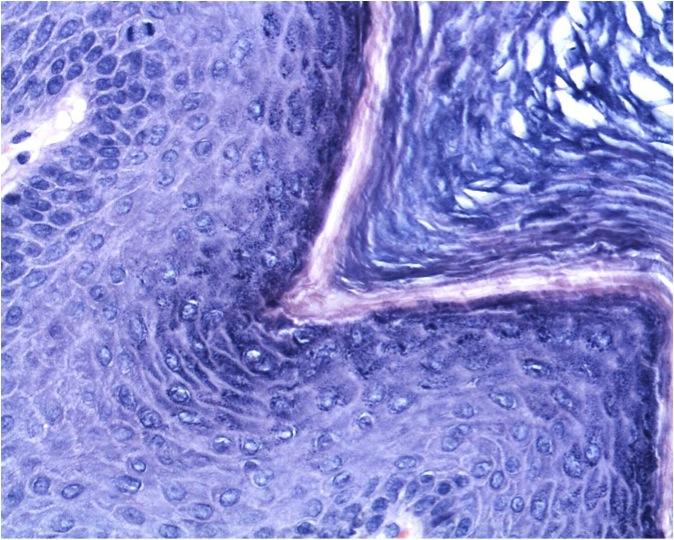 helmint-védekezési módszerek papilloma vírus külső tünetei