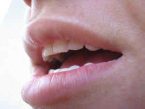 hpv fej nyaki rák papilloma vírus a nők tüneteiben
