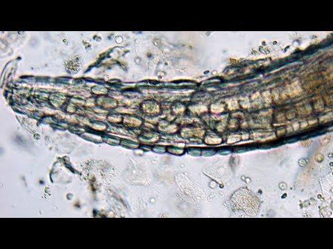 Gyógyszerek pinworms - 6 hatékony gyógyszer - Fekély - Hatékony pinworm tabletta felnőtteknél