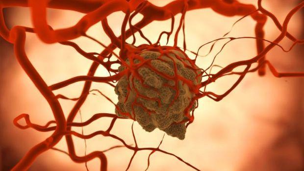 nem hormonális rák a hpv viszketést okoz