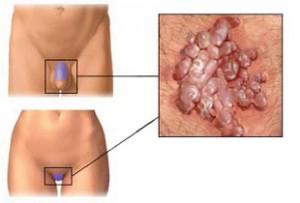 kenőcsök papilloma és condyloma kezelésére