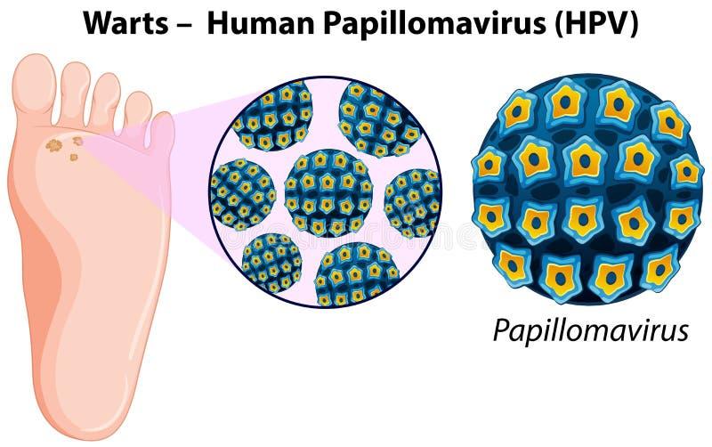 papilloma vírus 73