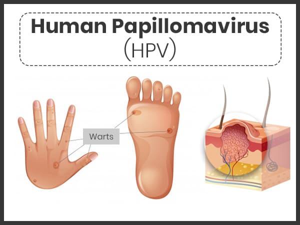 papilloma vakcina vírus megnagyobbodott nyirokcsomók