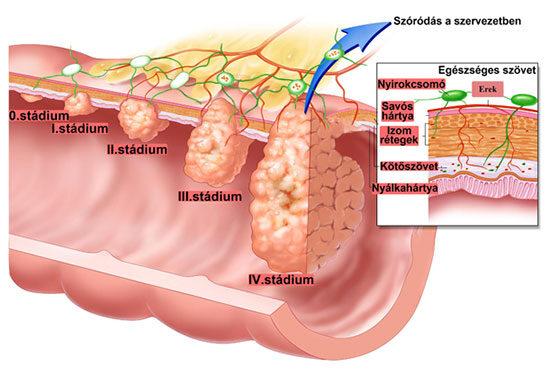 vastagbél vérző rák