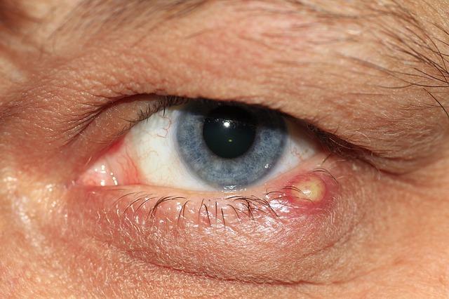 Igenis meg lehet szabadulni a szemölcstől! - Dermatica