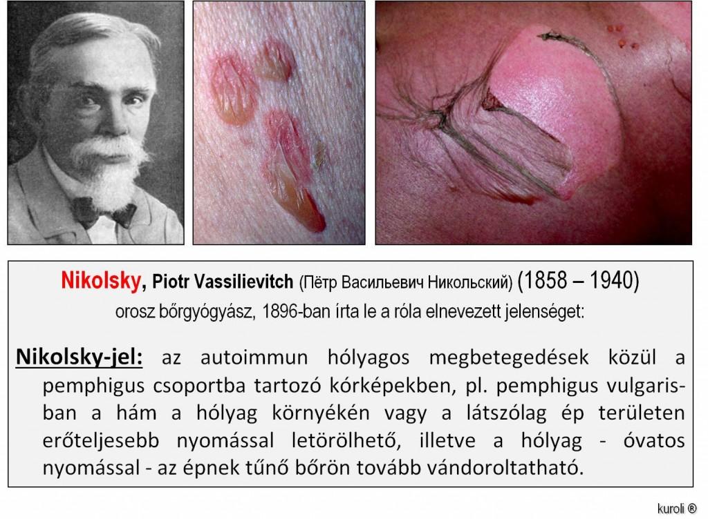 papillomatosis és bőr