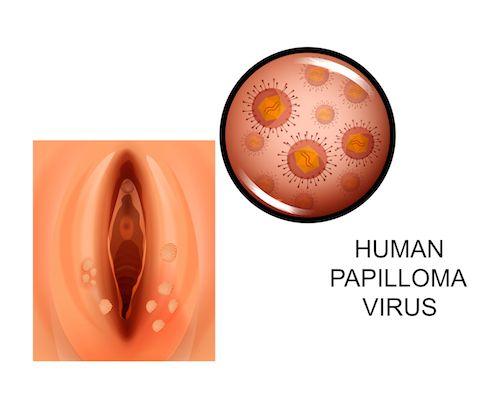 hpv vírus priznaky u zen