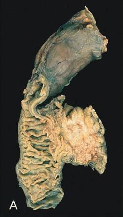 Hasnyálmirigyrák onkológiai kezelése