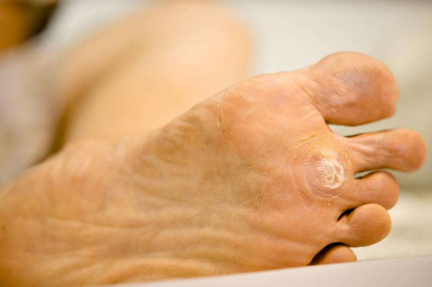 Így néz ki a fökény: az uszodában is elkaphatod a durva vírust - Egészség   Femina