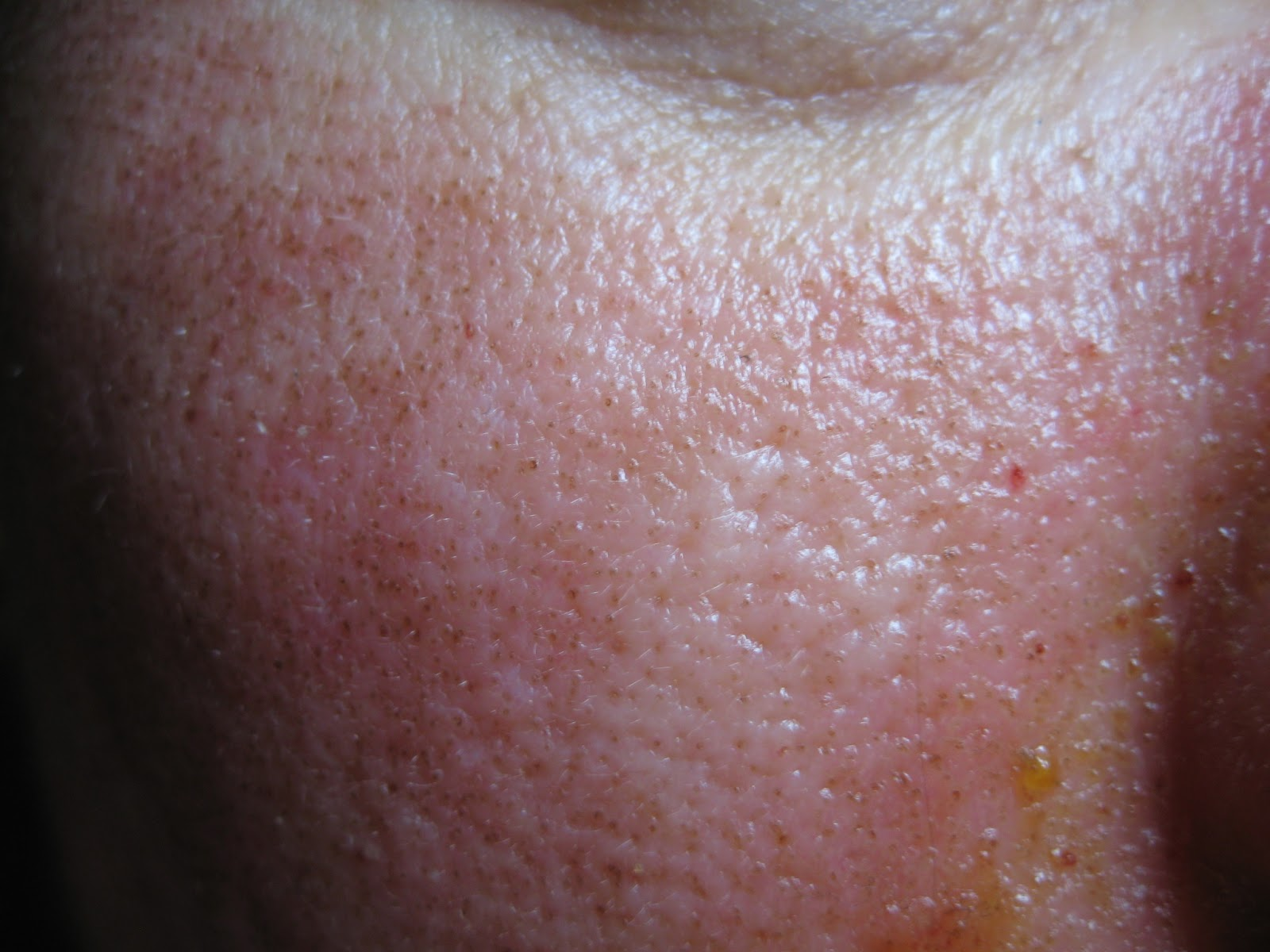 Sclerosisos papilloma ductalis hyperplasiaval Uploaded by