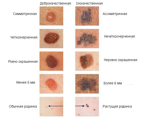 papilloma jóindulatú hám neoplazma