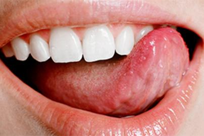 a férgektől az emberi tablettákig papillomavírus nőrák
