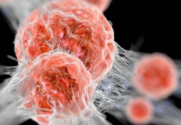 szájüregi rák Panamában hpv magas kockázatú negatív ne demek