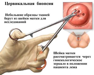 endometrium rákos lábfájdalom