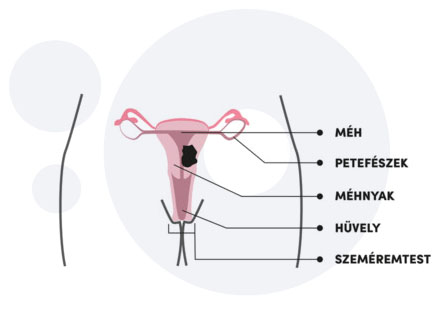 HPV és rák   Miri Tej