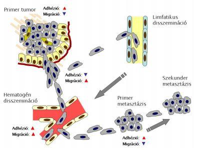 áttétes rák kaise hota hai A sarokelzáródások okai és a férgek kezelése
