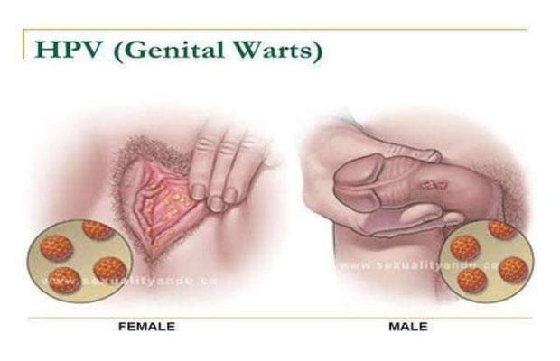 Ősztől a fiúknak is igényelhető a HPV-oltás - hajtervezes.hu