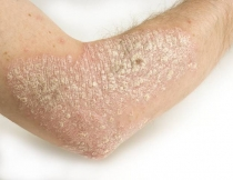 papilloma bőr okoz