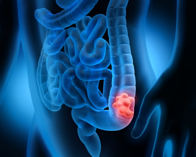 pinworms a kínai orvoslásban