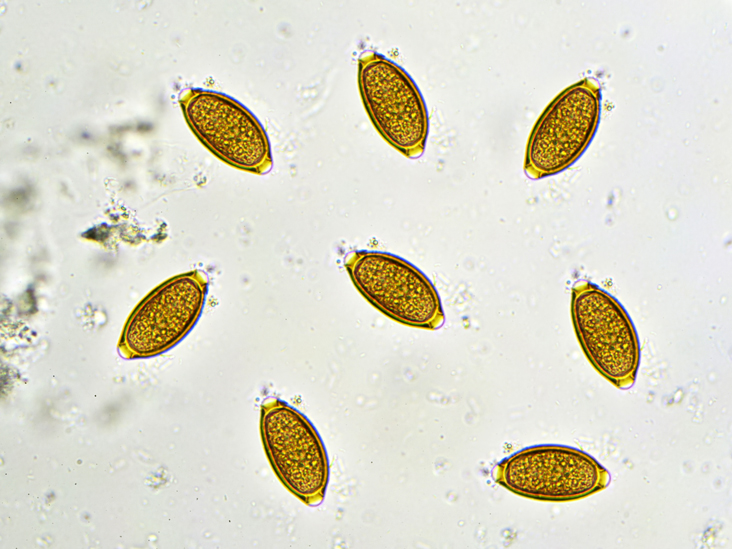 trichocephalosis pinworm