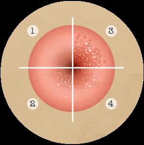 Méhnyakrák-szűrés, HPV, Rákszűrés Debrecen - Aranykéz
