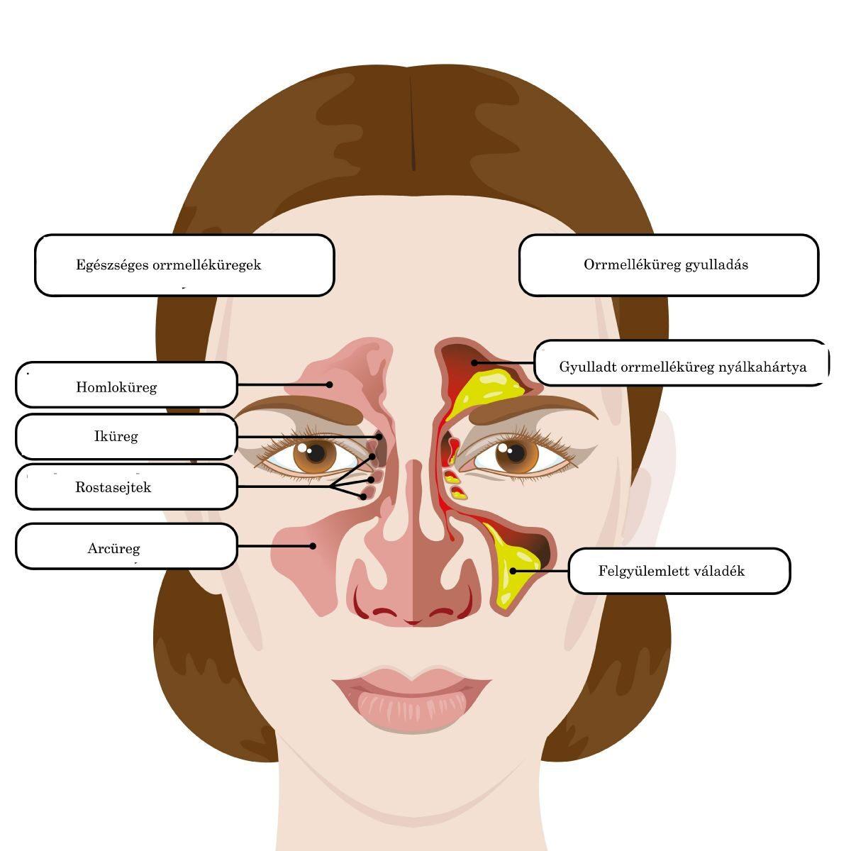 Tüsszögés okai – a nem-allergiás rhinitisz 7 típusa