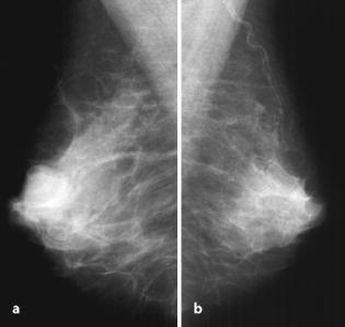 papilloma röntgen paraziták paraziták reagálnak