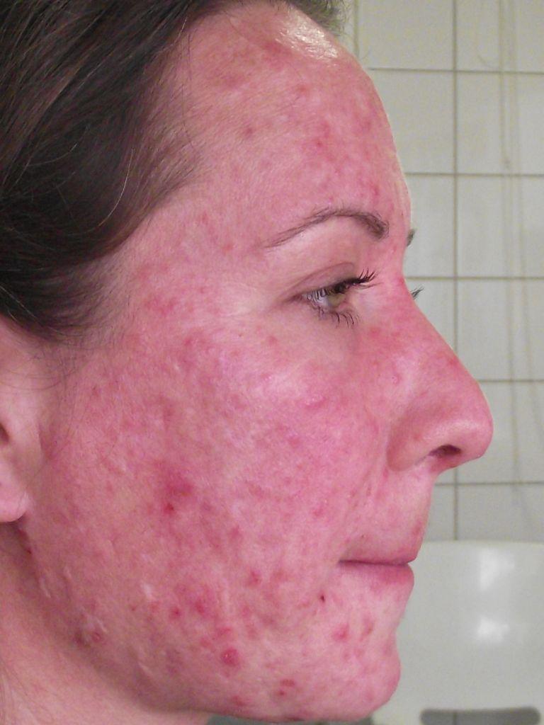 Papilloma az orrban: tünetek, kezelési módszerek - Chicken pox October