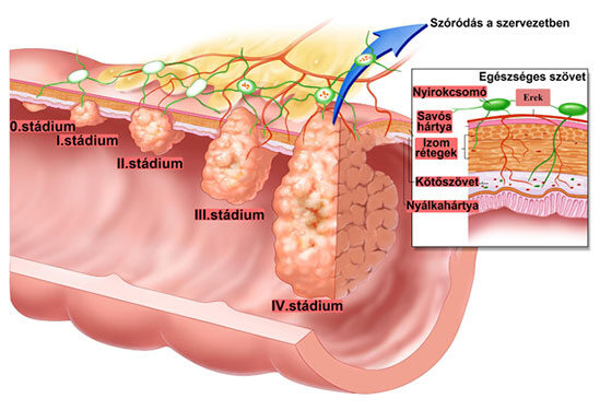 hatékony gyógyszerek a paraziták ellen a szervezetben helmint kezelõ tabletták
