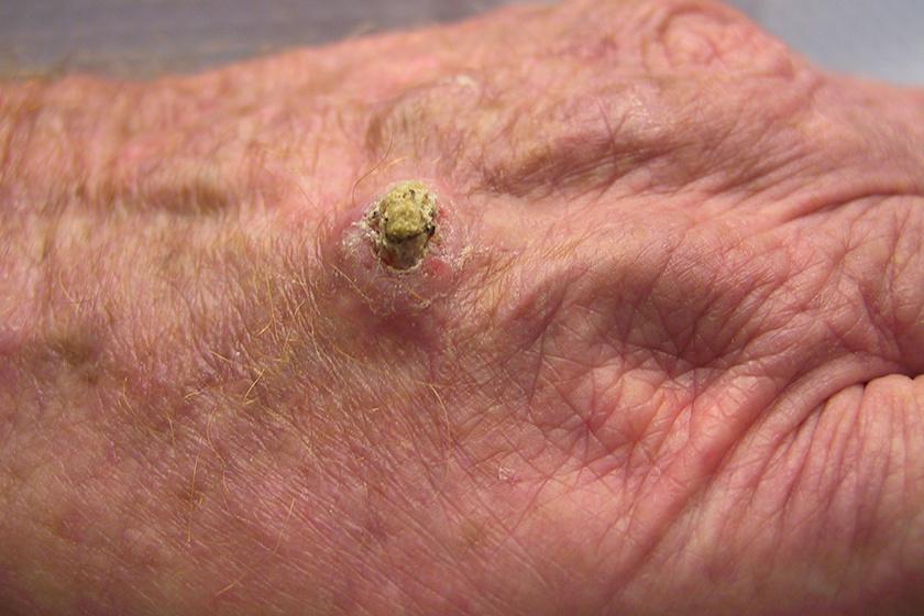 agresszív rákos szarkóma terjedő papilloma vírus