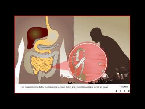a cervicalis condyloma kolposzkópiáját mutatja hpv ha nemi herpesz