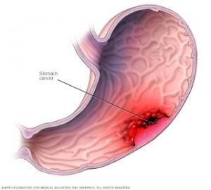 humán papillomavírus fertőzés hólyag